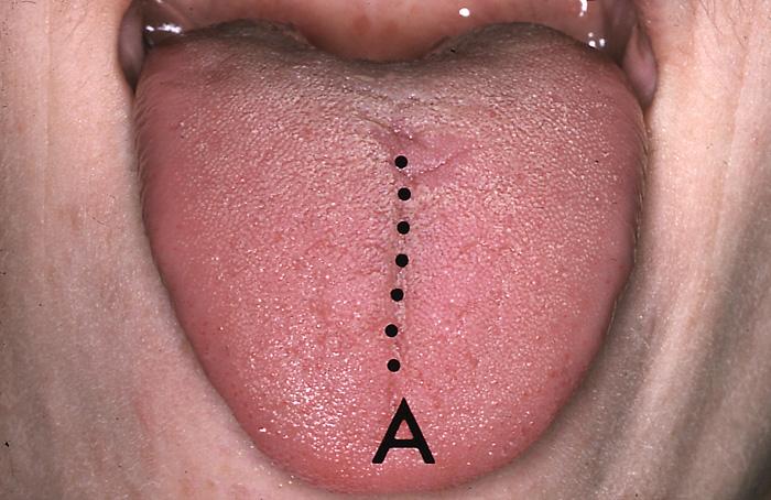 små røde prikker på tungen