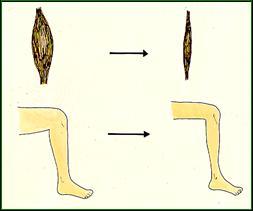 muskelsvind i ben
